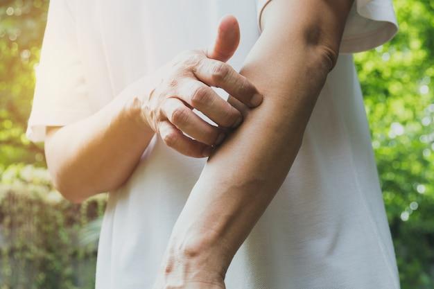 Mann kratzen juckreiz mit der hand. mann, der sein armgesundheitskonzept verkratzt.