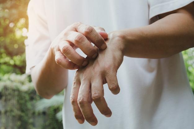 Mann kratzen juckreiz mit der hand. mann, der sein handgesundheitskonzept verkratzt.