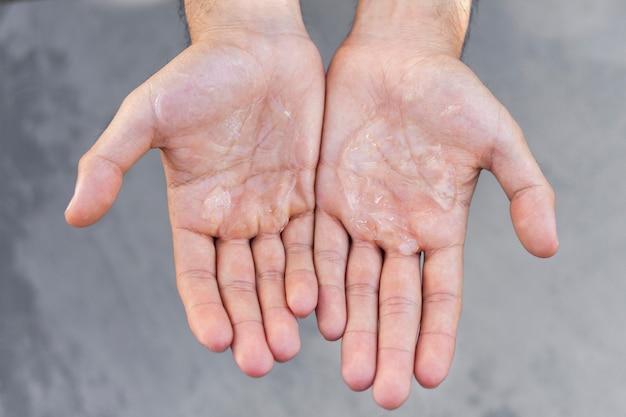 Mann mit hydroalkoholischem gel