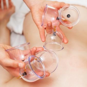Medizinische tassen in händen absaugen.