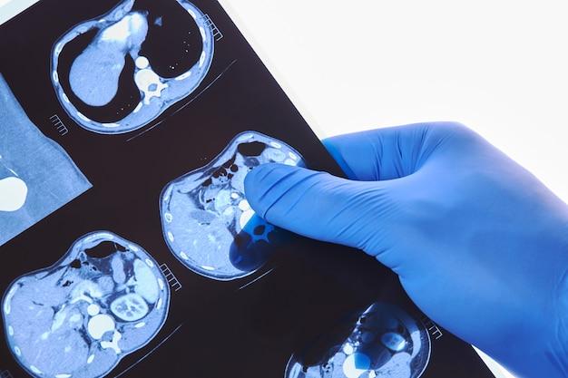 Medizinische tomographie ct ergebnisse prüfung hautnah. momentaufnahme der inneren organe. medizinische untersuchung