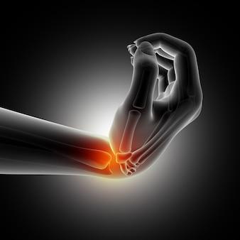 Medizinischer hintergrund, der handgelenk in verbogener position zeigt