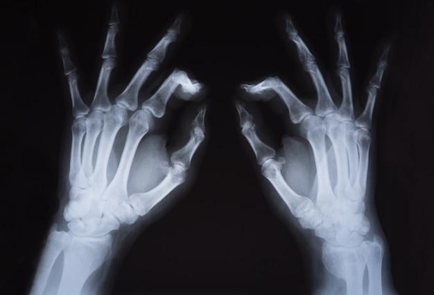 Medizinischer röntgenstrahl übergibt bild