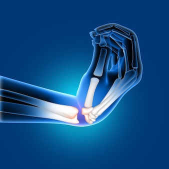 Medizinisches bild 3d eines schmerzlichen verbogenen handgelenkes