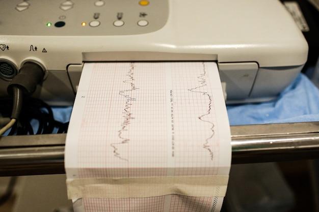Medizinisches gerät des elektrokardiogramms, das das gesundheitsdiagramm eines patienten zeigt