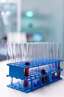 Medizinisches reagenzglas mit blut, das während der chemischen molekularen untersuchung auf dem tisch steht