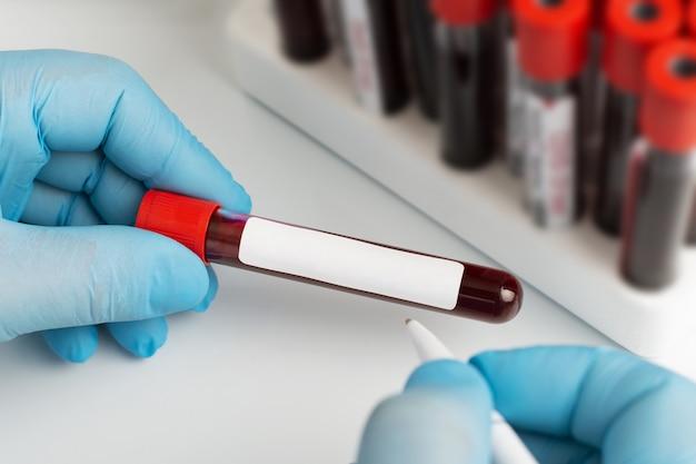 Medizinisches reagenzglas mit blutproben