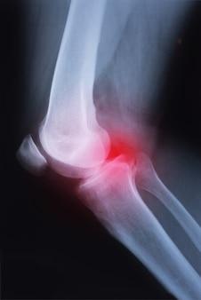 Medizinisches röntgenkniegelenkbild mit arthritis (gicht, rheumatoider arthritis, septischer arthr