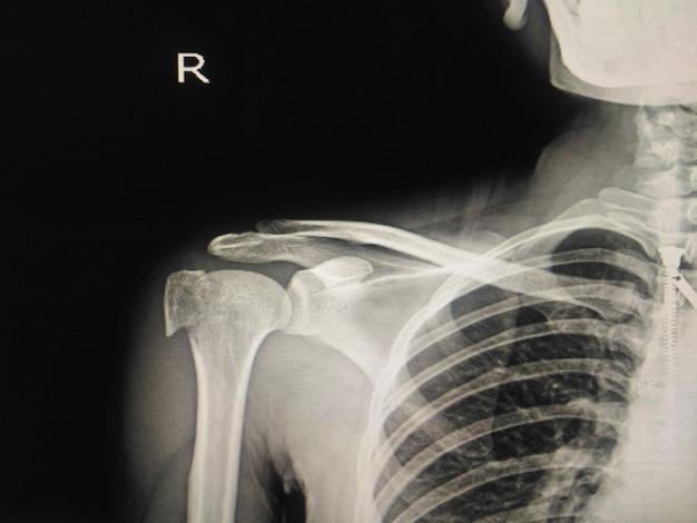 Menschliche röntgenstrahlenfraktur der rechten schulter am kopf von humerus