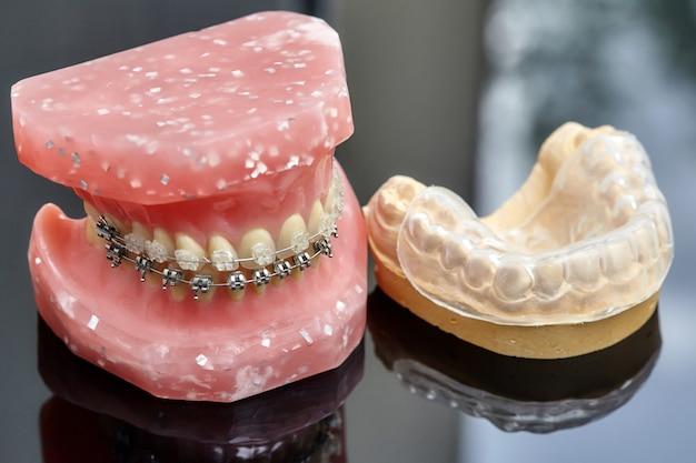 Menschliches kiefer- oder zahnmodell mit metall verdrahteten zahnmedizinischen klammern