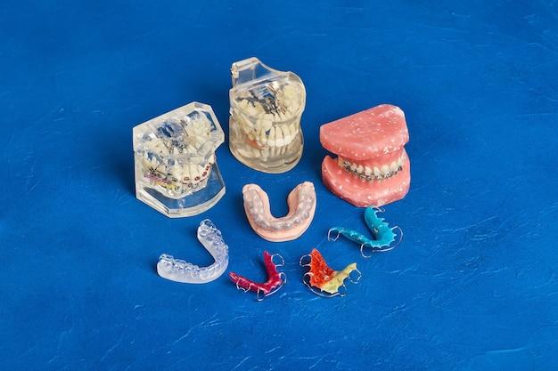 Menschliches kiefer- oder zahnmodell mit metallverdrahteten zahnspangen, kieferorthopädischem präsentationswerkzeug, nahaufnahme