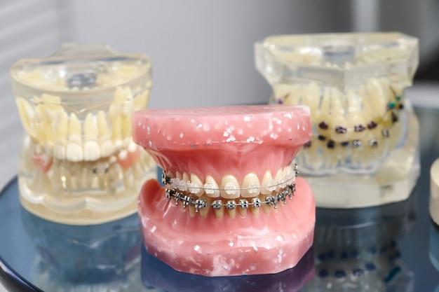 Menschliches kiefer- oder zahnmodell mit metallverdrahteten zahnspangen