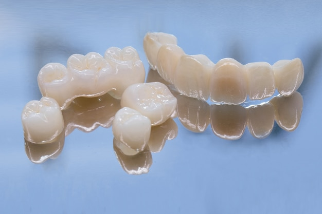 Metallfreie keramik-zahnkronen. keramisches zirkonium in der endgültigen version. beizen und glasieren. präzises design und hochwertige materialien