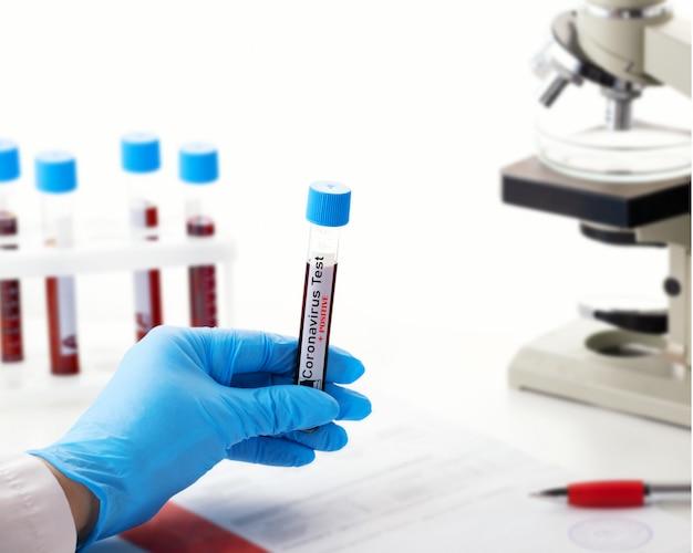 Mikrobiologe mit einem röhrchen mit einer durch coronavirus kontaminierten biologischen probe mit dem label covid-19 positiv. labor mit einem biologischen röhrchen zur analyse mit blut und zur entnahme von infektionskrankheiten.