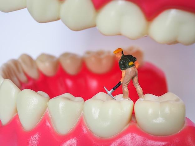 Miniaturarbeiter auf plastikzähnen von herausnehmbarem gebiss. zahngesundheit konzept.
