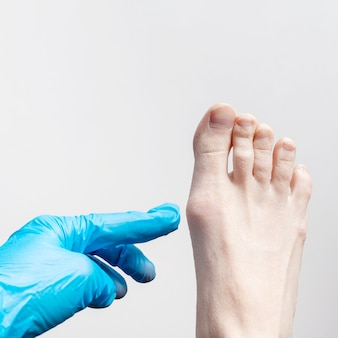 Mit einem blauen medizinischen handschuh untersucht ein orthopäde den fuß einer frau.