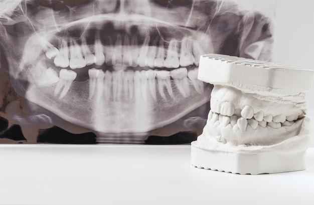 Modell aus zahngips menschlicher kiefer mit panorama-röntgenaufnahme