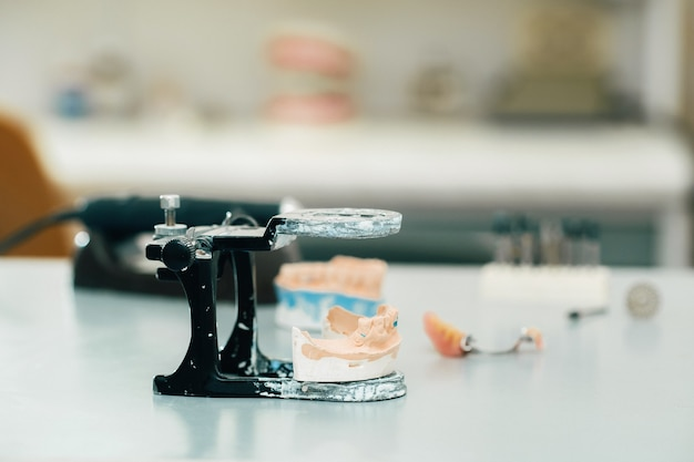 Modell von zähnen aus gips des kiefers für zahntechniker