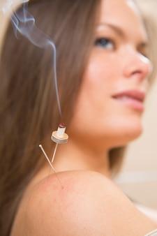 Moxibustion akupunkturnadeln hitze auf frau