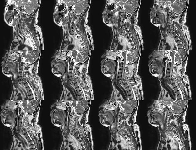 Mri von cervical spine history: ein 57-jähriger mann, bei dem in der vergangenheit ein fahrzeugunfall stattgefunden hat