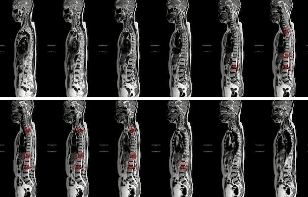 Mrt der thoracolumbar-wirbelsäulenimpression: mäßige pathologische kompression der t11- und l2-spiegel mit verstärkung mehrerer markläsionen bei t1-, t10- bis t12-, l2-, l3- bis l5-spiegeln.