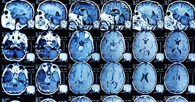 Mrt-scan eines patienten mit einem tumor im hirnstamm.