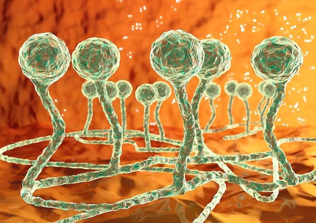 Mucor schimmel schwarzer pilz verursacht mukormykose in der haut, nebenhöhlen, gehirn und lunge. komplikation von covid-19. 3d-darstellung
