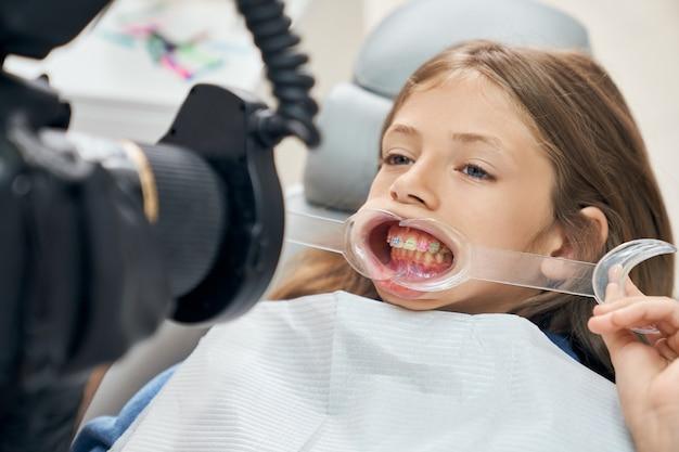Mundspreizer und ausrüstung in der stomatologie verwenden.