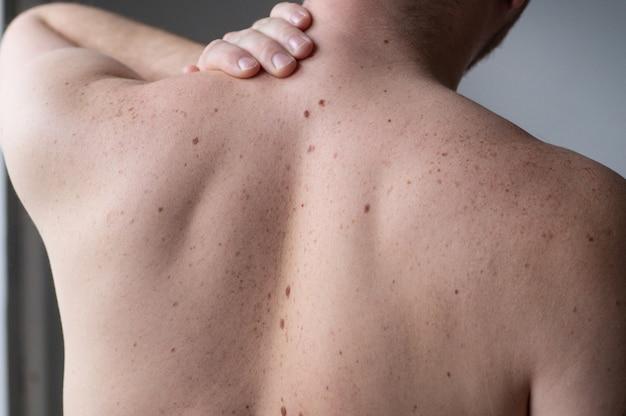 Nackte haut auf einem mann mit verstreuten muttermalen und sommersprossen