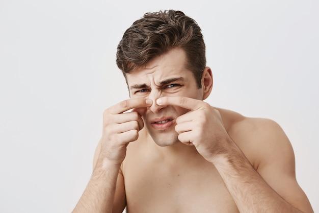 Nackter muskulöser mann mit ansprechendem aussehen, stirnrunzelndem gesicht, berührender nase, hautproblemen. kaukasischer mann mit dunklem haar, der mit seinen blauen augen schaut. schönheits- und jugendkonzept.