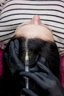 Nadel-mesotherapie. kosmetikerin macht injektionen in den kopf der frau. stärken das haar und sein wachstum.