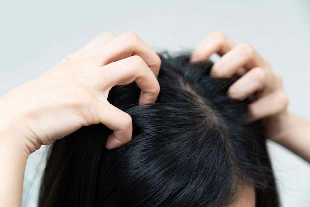 Nahaufnahme auf der hand der frau, die ihr juckendes haar verkratzt