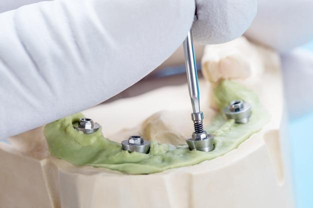 Nahaufnahme / cabrio-abutment-komponenten / temporäres abutment des zahnimplantats / implantat der abutmentschraube.