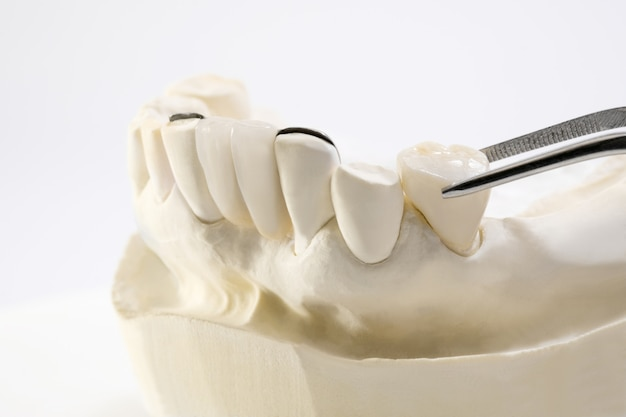 Nahaufnahme / dental maryland bridge / kronen- und brückenausrüstung und modell express fix restauration.