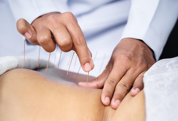 Nahaufnahme der älteren frauenrückseite mit stahlnadeln während des verfahrens der akupunkturtherapie