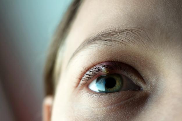 Nahaufnahme des augenschwarms eines kindes. ophthalmische hordeolum-krankheit.