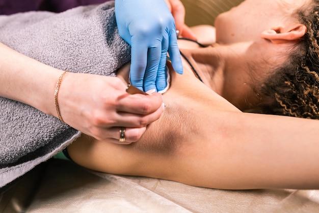 Nahaufnahme des entfernens der achselhaare mit einer pinzette. weibliche enthaarung. kosmetik- und schönheitssalon