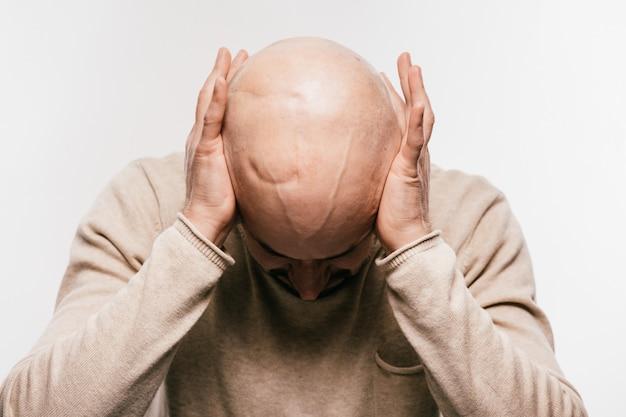 Nahaufnahme des kahlen männlichen kopfes nach onkologischer operation