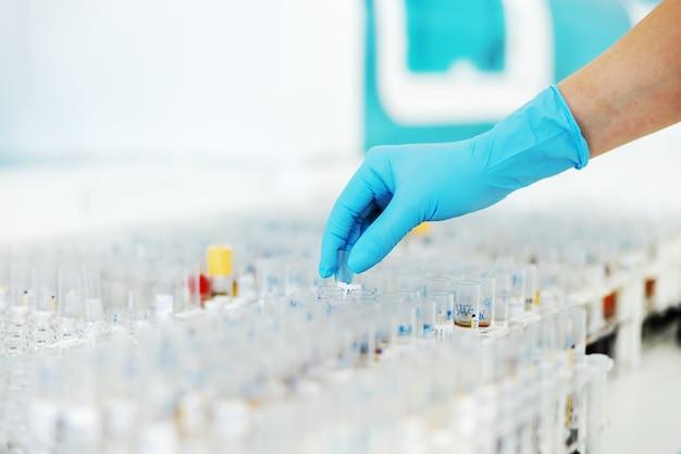 Nahaufnahme des laborassistenten, der reagenzglas mit blutprobe entnimmt, um es auf koronavirus zu testen.