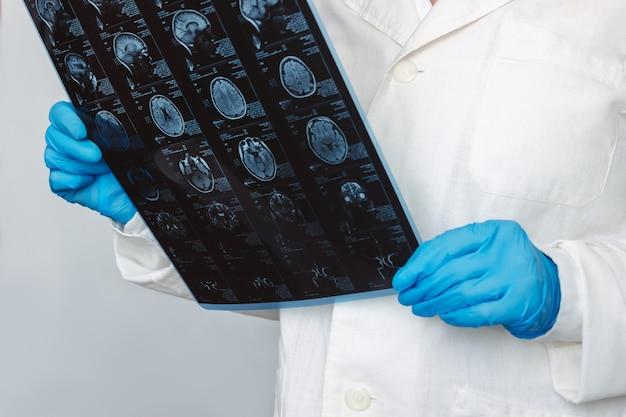 Nahaufnahme des mrt-scans des gehirns durch computertomographie in den händen des arztes