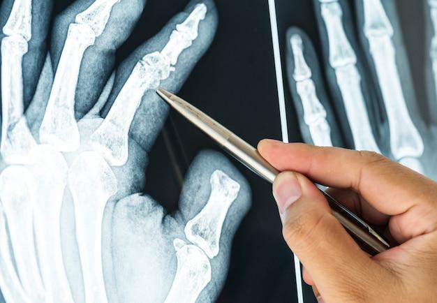 Nahaufnahme des röntgenfilms eines gebrochenen fingers