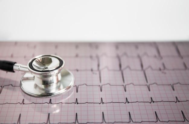 Nahaufnahme des stethoskops auf herz schlägt kardiogramm