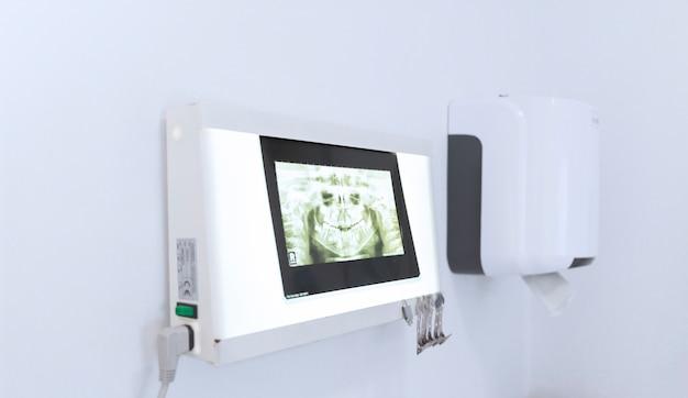 Nahaufnahme des zahnmedizinischen röntgenstrahls auf maschine