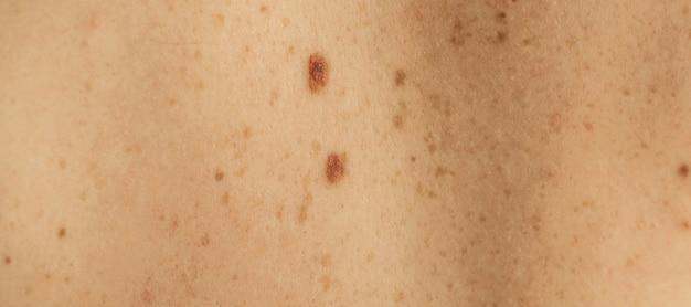 Nahaufnahme detail der nackten haut auf einem mann zurück mit verstreuten maulwürfen und sommersprossen. überprüfung gutartiger muttermale