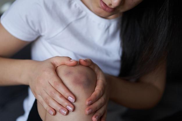 Nahaufnahme einer person, die ein verletztes kniegelenk massiert. bluterguss am knie. beinschmerzen.