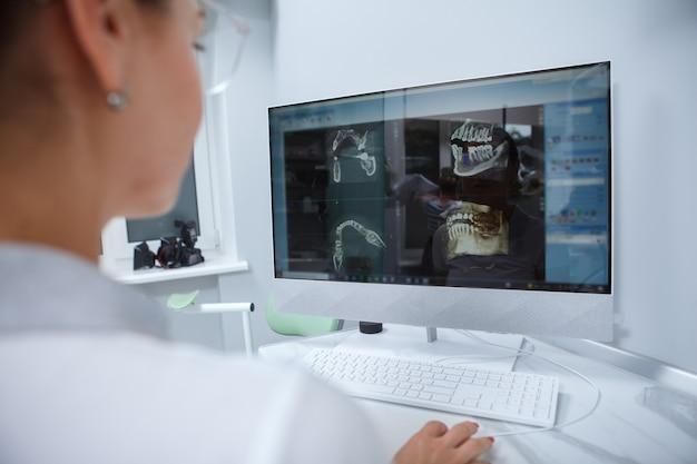 Nahaufnahme einer zahnärztin, die zahnärztliche röntgenaufnahmen auf einem computer untersucht