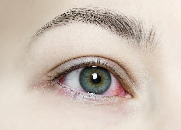 Nahaufnahme eines schweren blutunterlaufenen roten auges. virale blepharitis, bindehautentzündung, adenoviren. gereiztes oder infiziertes auge.