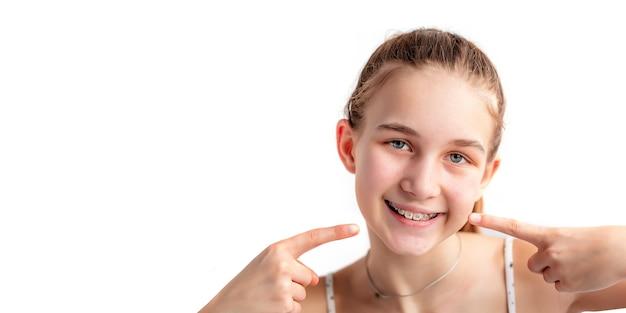 Nahaufnahme eines teenager-mädchens, das in kieferorthopädischen klammern-banner lächelt mädchen mit zahnspange an den zähnen