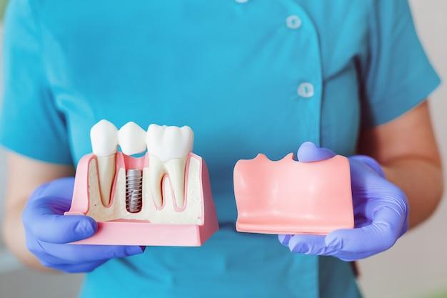 Nahaufnahme eines zahnimplantatmodells. hände des zahnarztes, der das implantat hält