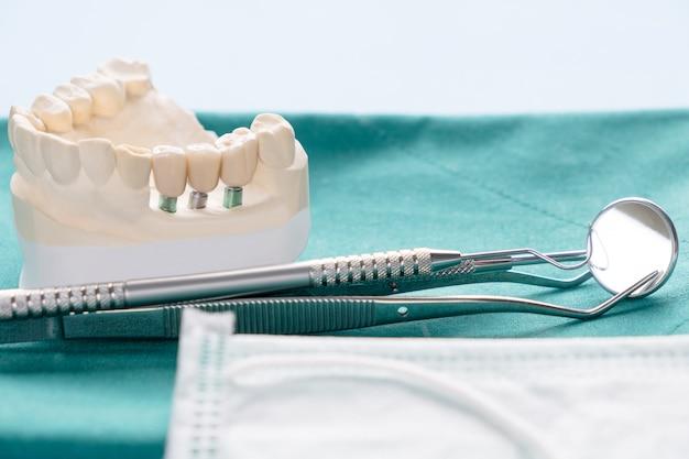 Nahaufnahme implantatmodell zahnstütze fixieren brückenimplantat und krone.